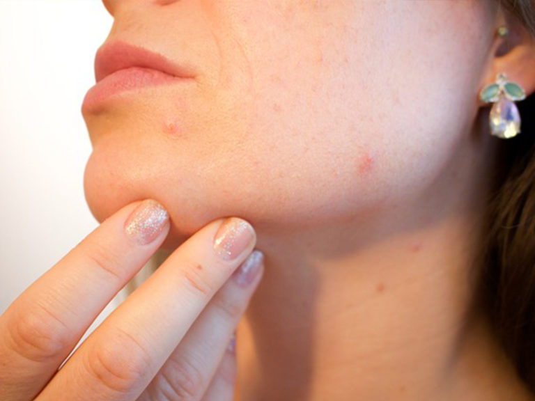 Acne Treatment: Which Is The Best One For Mild Acne